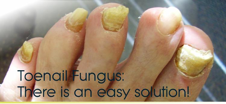 Toenail Fungus Basics